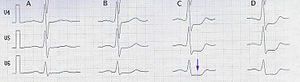 image shows stress test results. Dr. Noel Peterson, cardiologist, Greenville NC