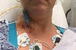 image shows Radial artery catheterization
